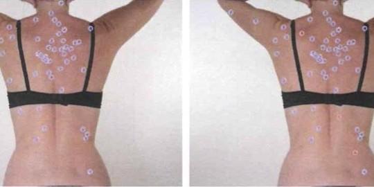 Marzo è il mese della prevenzione dei tumori della pelle: mappatura dei nei a tariffa agevolata